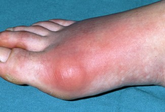 drugs used for acute gout big toe pain gout uric acid lab tests online